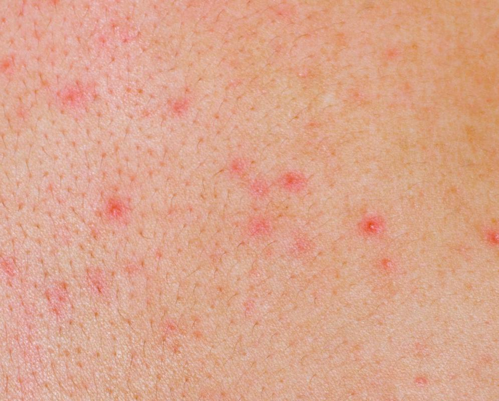 Red spots on skin, but not itchy? Find out the common causes
