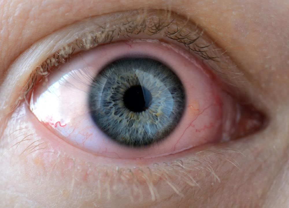Redness of the eye is common with different forms of ophthalmia.