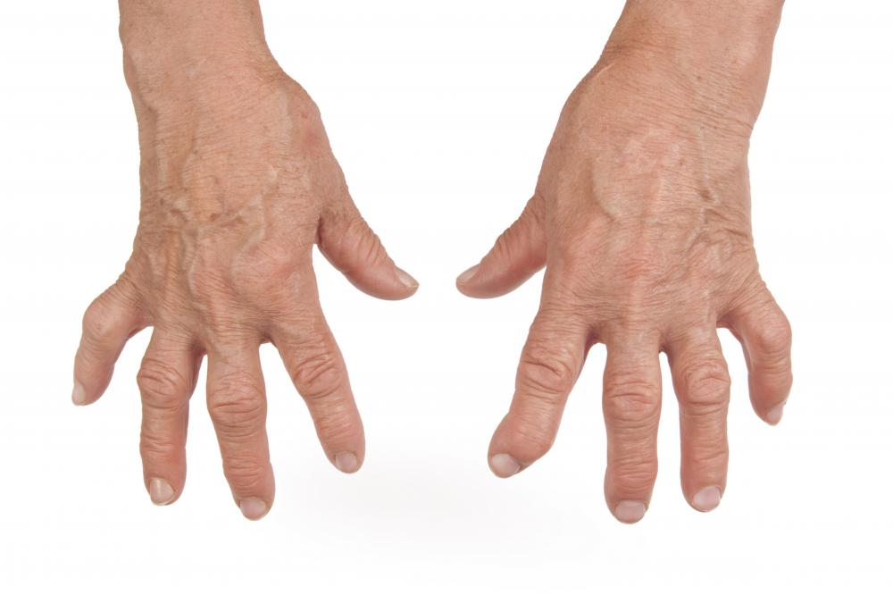 Swollen finger joints can make tasks like buttoning a shirt difficult.