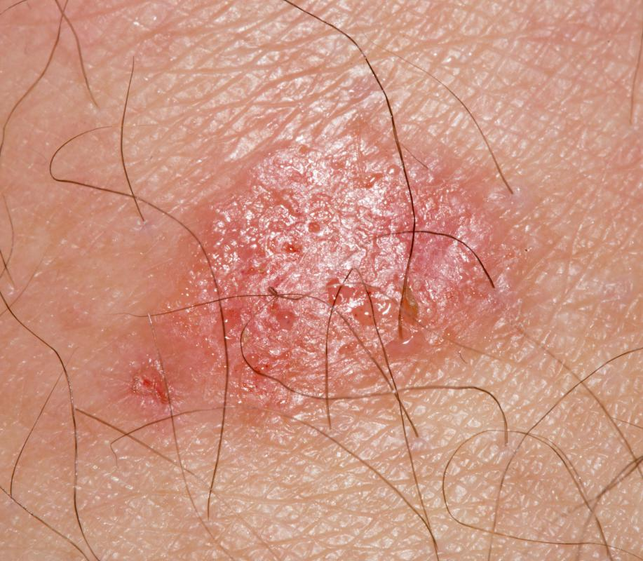 Ringworm appears as a circular rash on the skin, and can be contagious if other people come into contact with that part of the skin.