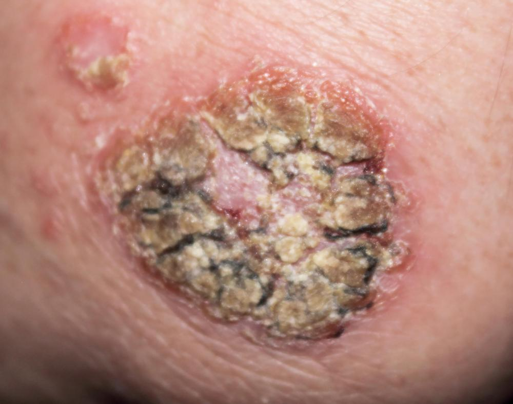 A person with scabies may have visible inflamed blisters.