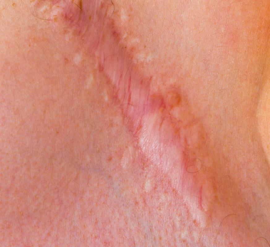 Laser surgery can sometimes reduce the appearance of scars.