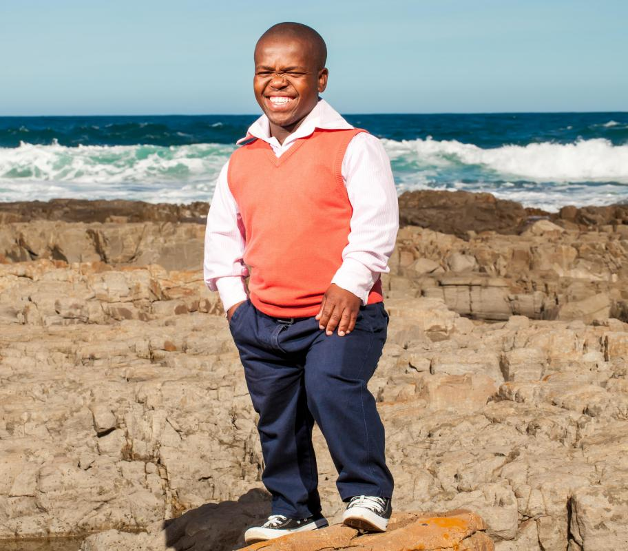 Dwarfism usually causes different configurations of the face or head in little people.