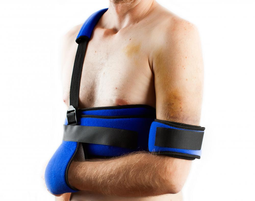 An arm splint keeps the arm in place after an injury or surgery to help with healing.