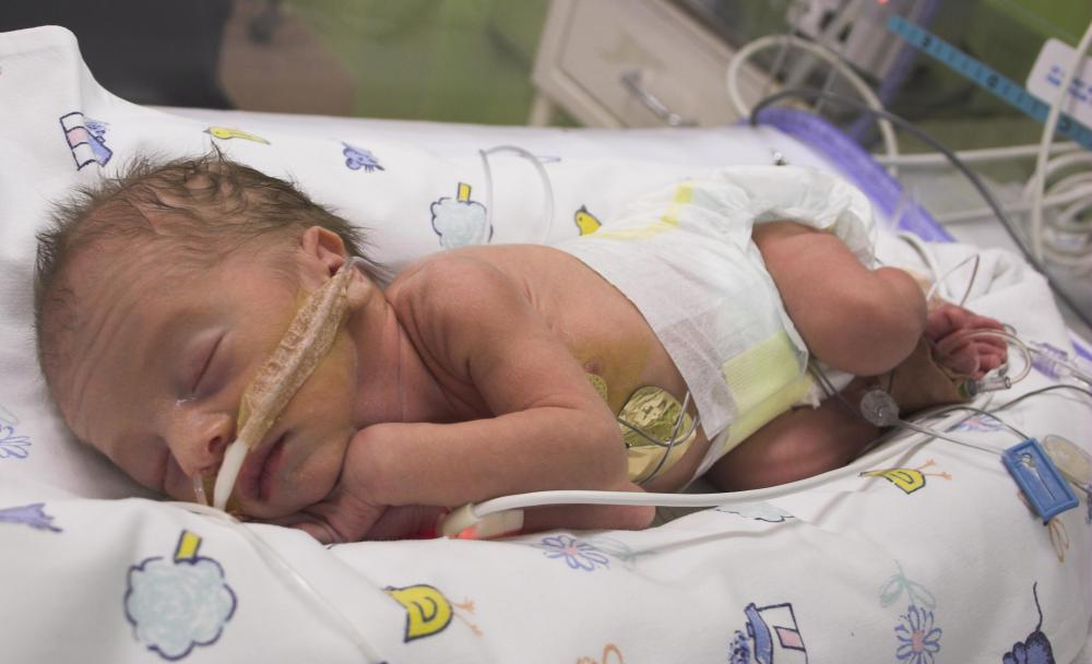 What is Neonatology? (with pictures)