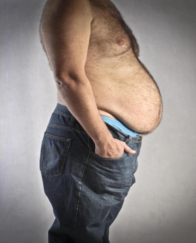 Obesity may affect a man's sperm count.
