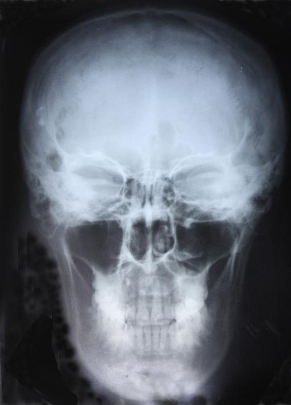 A radiograph can show the frontal sinuses in the forehead.