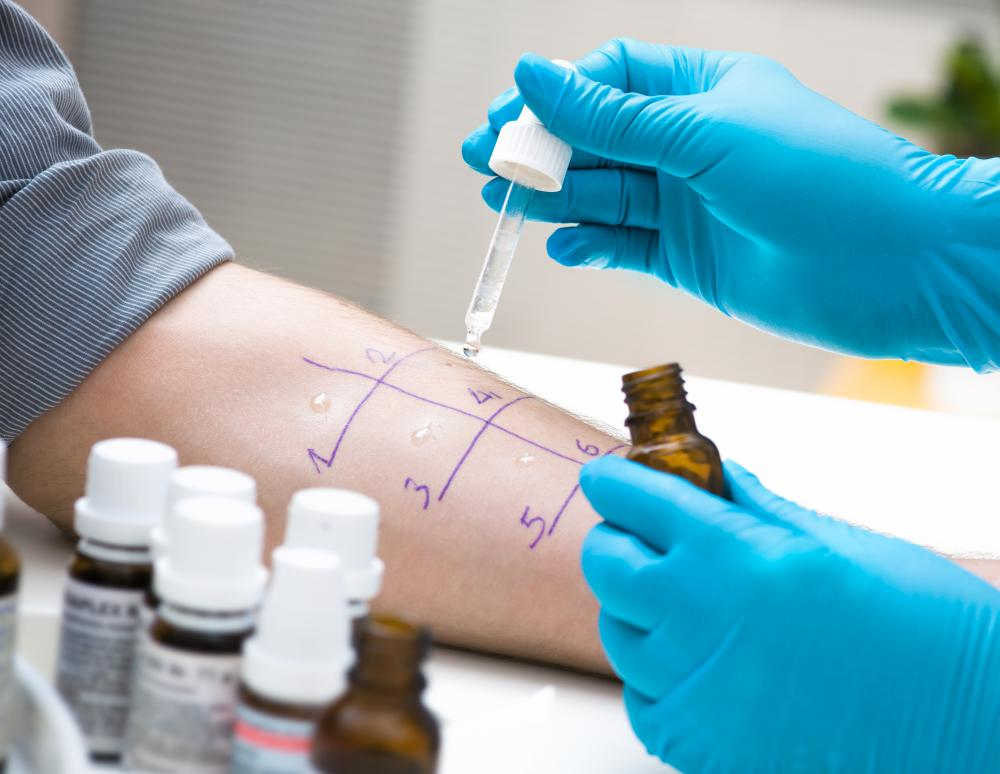 A skin allergy test can be used to determine a medical diagnosis for certain allergens by introducing small samples of the allergens to the skin.