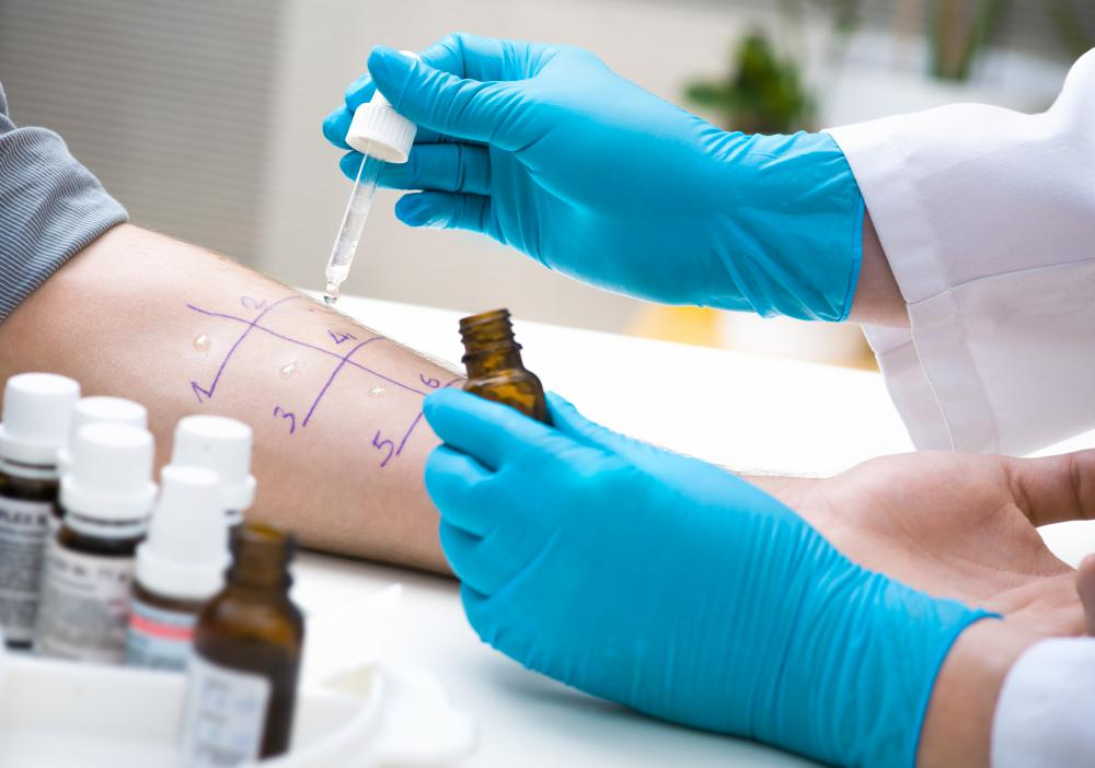 A skin prick test can determine if a person has any allergies.
