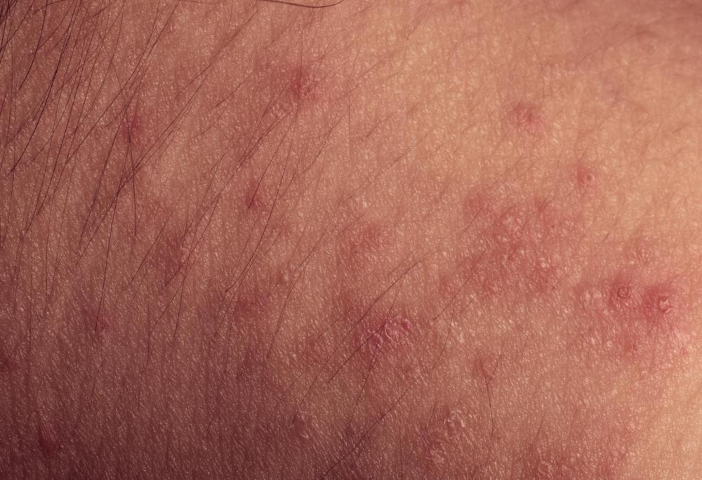 A red, itchy rash is typically the most common sign of an allergic reaction to soap.