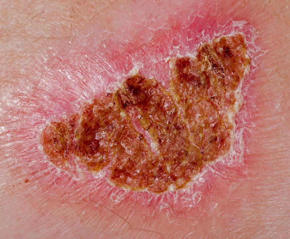 Wound covers are used to prevent infection.