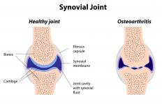 Synovial joints are gliding joints often affected by osteoarthritis.