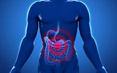 Abdominal aneurysms are sometimes mistaken for gastrointestinal pain.