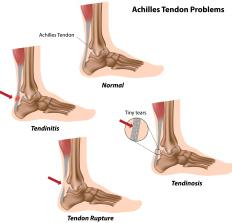 A diagram of the Achilles tendon and common tendon problems, including tendinosis and tendinitis..