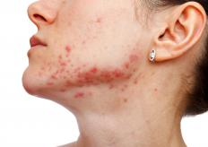 Acne is a possible side effect of using an estradiol patch.