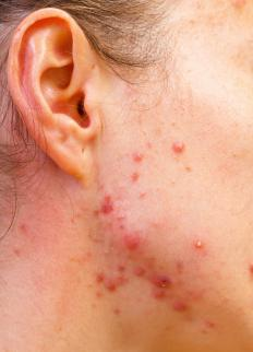 Acne is an example of a primary lesion.