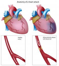 The anatomy of a heart attack. Cholesterol in the bloodstream can build up, causing coronary stenosis.