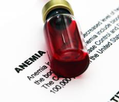 Cooley's anemia results in low levels of hemoglobin.