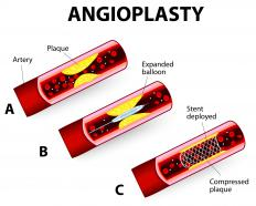 Stent complications might occur if an artery is perforated during an angioplasty procedure.
