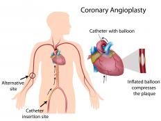 Coronary angioplasty inserts a small catheter that is guided through veins and arteries.