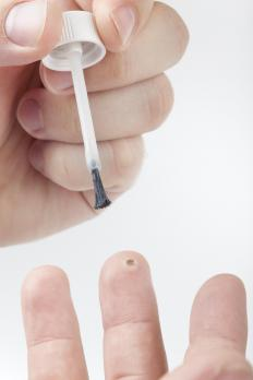 A person applying medicine to a wart.
