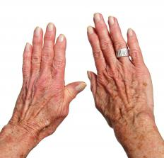 Liver spots, which often appear on the hands, resemble large freckles.