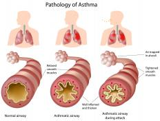 An illustration of the pathology of asthma.