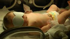 A NICU is a Neonatal Intensive Care Unit where many premature babies are treated.