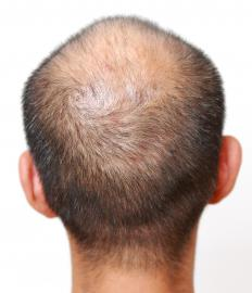 Elevated DHEA levels may cause hair loss.