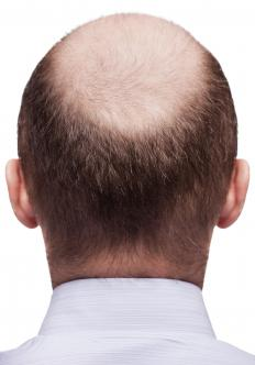 Hair growth patterns include male pattern baldness.