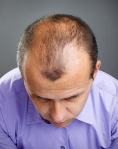 Rogaine® slows hair loss in some people.