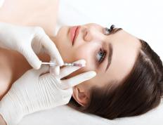 Botox injections work best on glabellar lines that are just beginning to form.