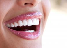 A woman with healthy gums.