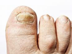 A toe wound that goes unnoticed due to numbness can lead to an infection.