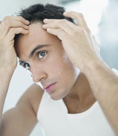 Certain shampoos may help the cause of a thinning hairline.