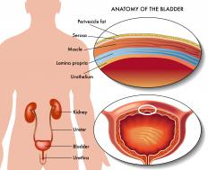 An urethral caruncle is a reddish wart near the opening of the urethra.