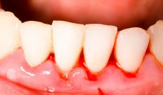 Bleeding gums are not normal when brushing, but might be caused by gingivitis.