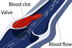 If the femoral vein becomes blocked by a blood clot, blood will be unable to drain from the leg.