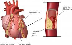 Blockage caused by blood clots may cause hypoxia.