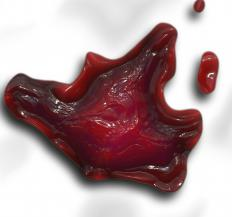 The presence of blood clots in urine is called hematuria.