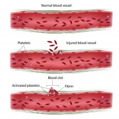 The protein fibrin is what causes blood to clot.