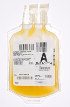Blood plasma, which is extracted as part of the treatment for Guillain-Barré syndrome.