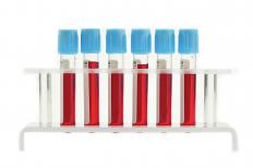 Blood samples can be analyzed to check white and red blood cell counts.