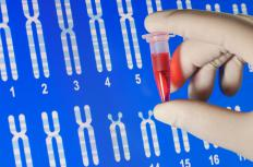 Genetic testing can confirm the presence of an extra chromosome.