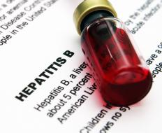 A chronic case of hepatitis B can lead to liver scarring.