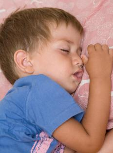 Children suffering from croup may experience stridor.