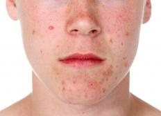 A whitehead, or a closed comedone, is a form of acne.