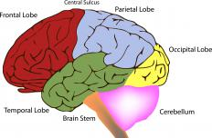 Tumors in the temporal lobe part of the brain may or may not be cancerous.