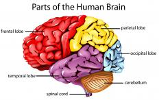 Frontal lobe degeneration occurs when one or both frontal lobes begins to atrophy.