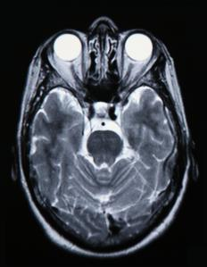 A brain scan will reveal to a doctor whether or not there is brain bruising.